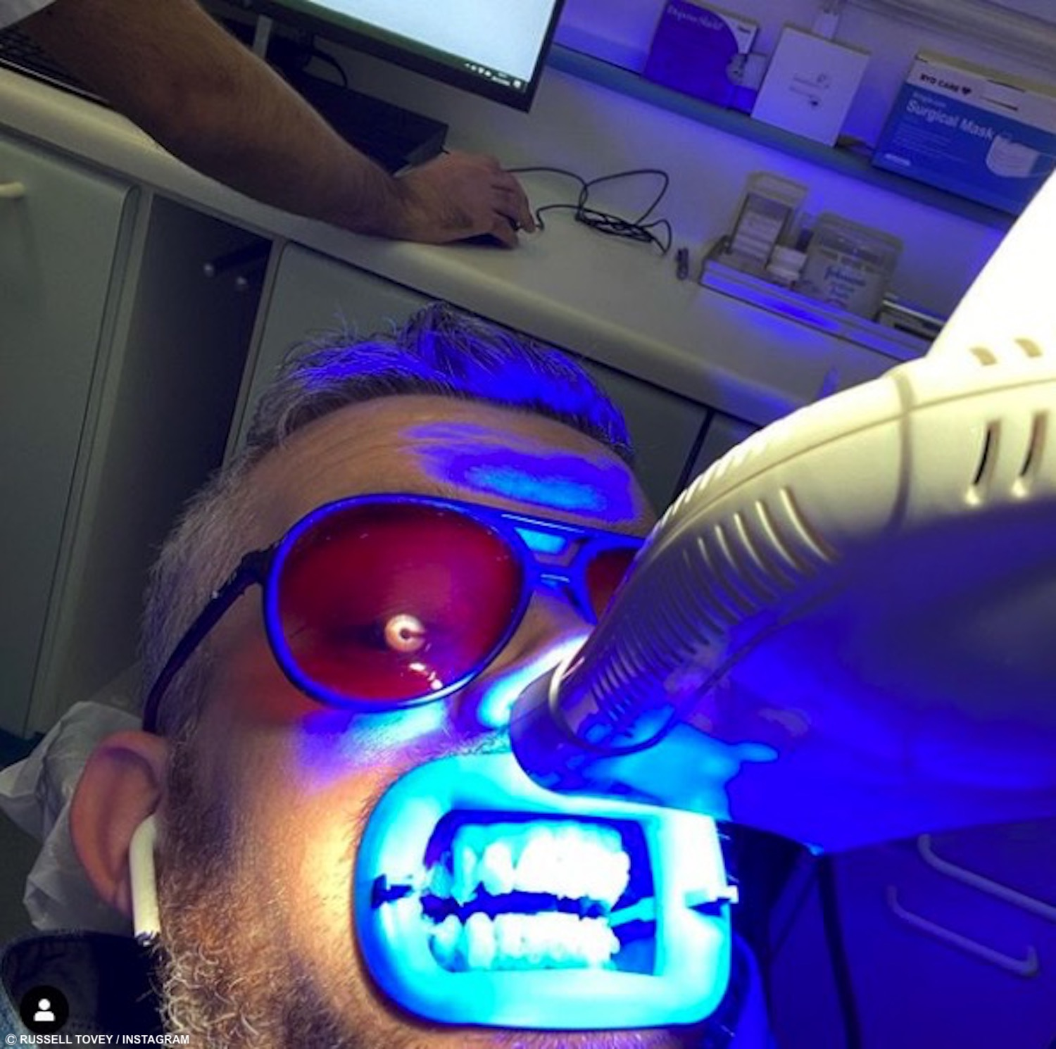 Russell Tovey teeth whitening